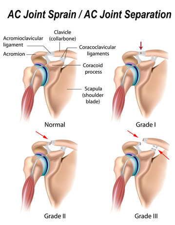 Acromioclavicular Joint Pain - Shoulder Pain differential Diagnosis